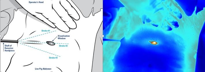 氦氣冷凝, 手術全程體表溫度不超過41度