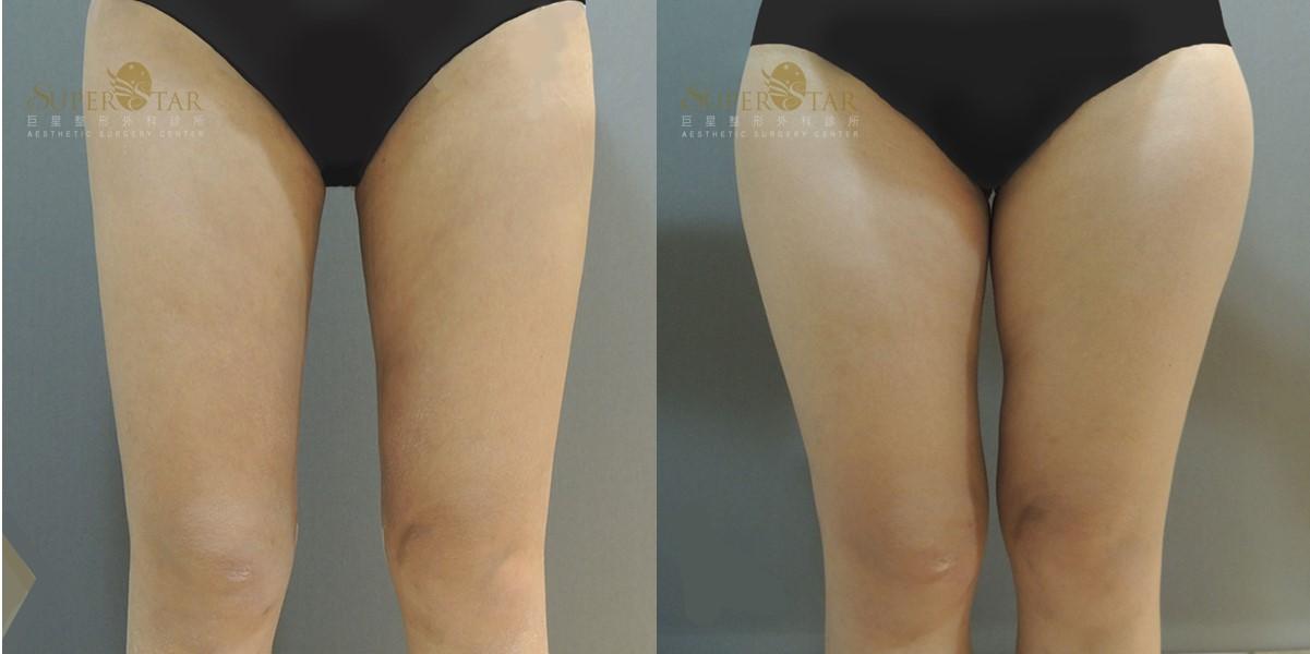 電漿抽脂, 大腿抽脂
