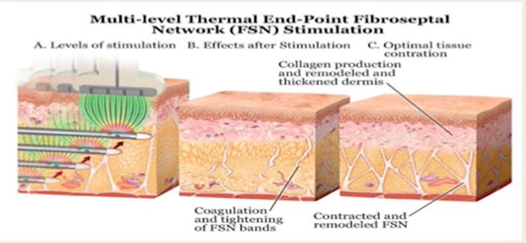 超能電漿可同步緊縮深,中,淺層的纖維中膈層