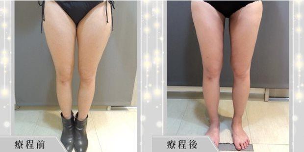 大腿抽脂, 大腿 抽脂