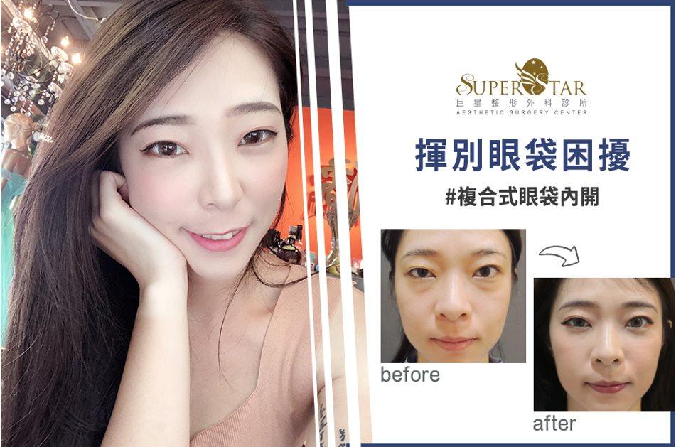 林敬鈞眼袋,眼袋,台北眼袋,眼袋手術,複合式眼袋內開手術