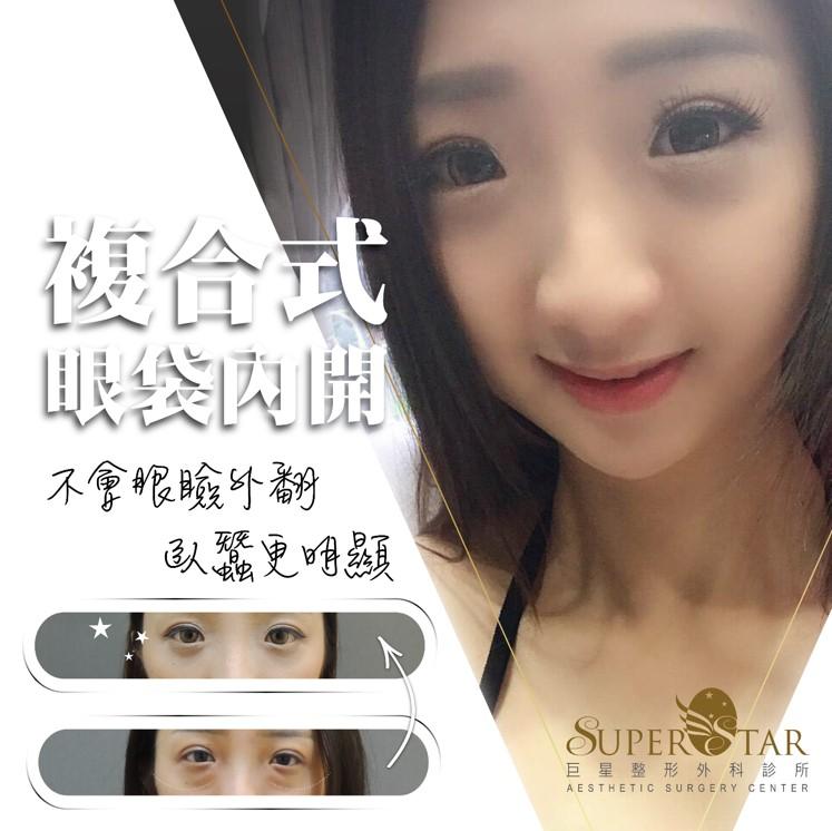 眼袋,台北眼袋,眼袋手術,眼袋手術醫生,林敬鈞 眼袋