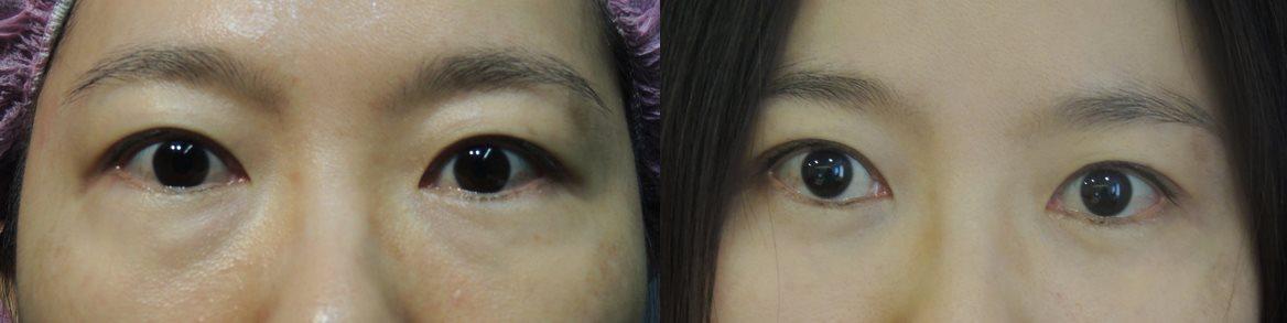 複合式眼袋內開手術